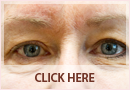 Exilis Before and After Images - Fine Lines, Wrinkles & Folds Case 12