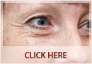 Exilis Before and After Images - Fine Lines, Wrinkles & Folds Case 14
