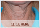 Exilis Before and After Images - Fine Lines, Wrinkles & Folds Case 03