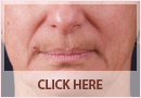 Exilis Before and After Images - Fine Lines, Wrinkles & Folds Case 01