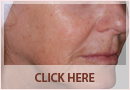 Exilis Before and After Images - Fine Lines, Wrinkles & Folds Case 02