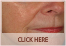 Exilis Before and After Images - Fine Lines, Wrinkles & Folds Case 05