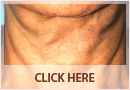 Exilis Before and After Images - Fine Lines, Wrinkles & Folds Case 06