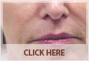Exilis Before and After Images - Fine Lines, Wrinkles & Folds Case 08