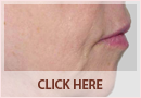 Exilis Before and After Images - Fine Lines, Wrinkles & Folds Case 09