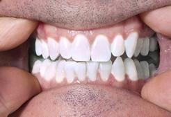 Maine Center for Dental Medicine patient After Image Case 1