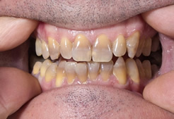 Maine Center for Dental Medicine patient Before Image Case 1