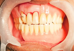 Maine Center for Dental Medicine patient After Image Case 2