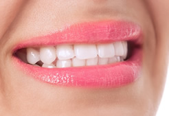 Maine Center for Dental Medicine patient After Image Case 4