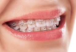 Maine Center for Dental Medicine patient Before Image Case 4