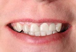 Maine Center for Dental Medicine patient After Image Case 7