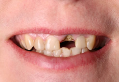 Maine Center for Dental Medicine patient Before Image Case 7