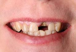 Maine Center for Dental Medicine patient Before Image Case 7